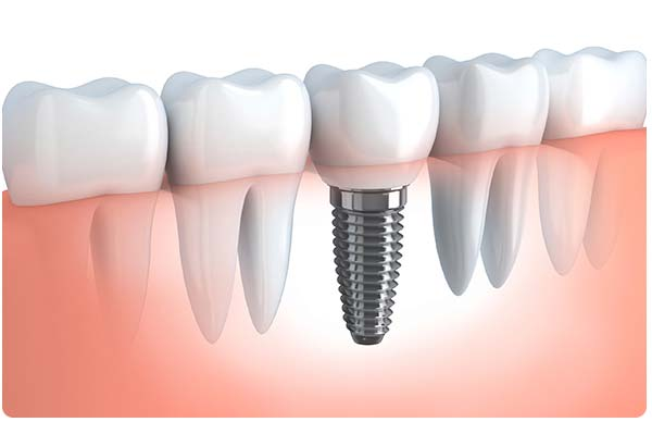 dental-implant-college-dufferin-dental-clinic