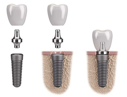 dental implants tooth college dufferin dental clinic