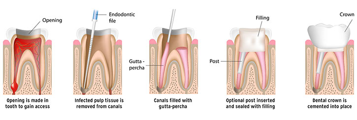 root canal treatment college dufferin dental toronto