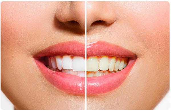 teeth whitening toronto college dufferin dental clinic