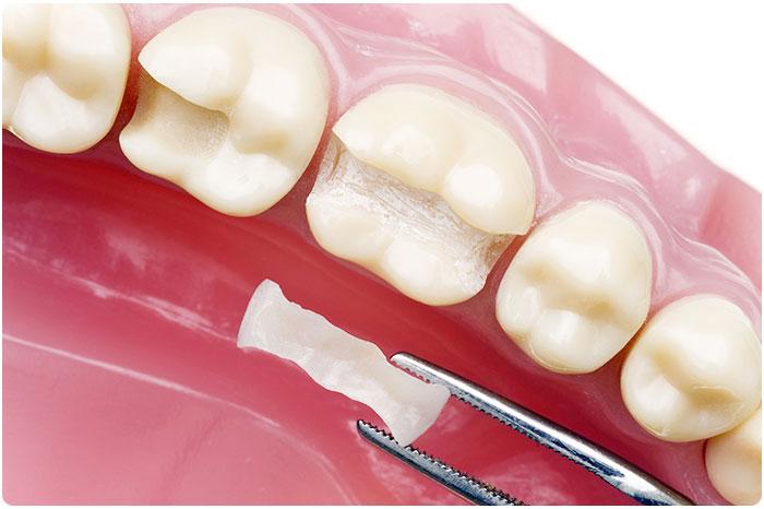 dental inlay & onlay college dufferin dental toronto