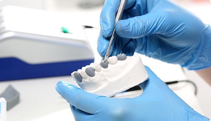 dental lab onlay college dufferin dental toronto