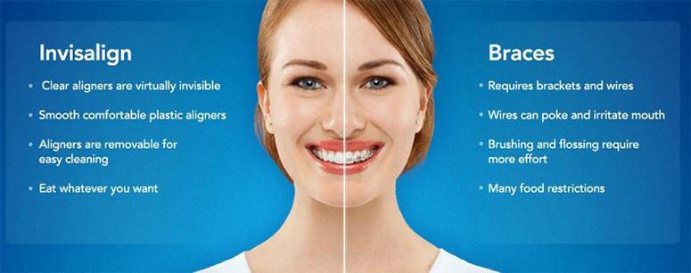 orthodontics invisalign college dufferin dental toronto